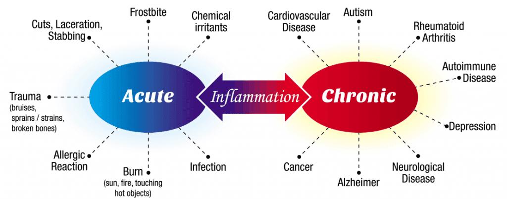BD-Oil-for-Inflammation-–-CBD-Anti-Inflammatory-Properties